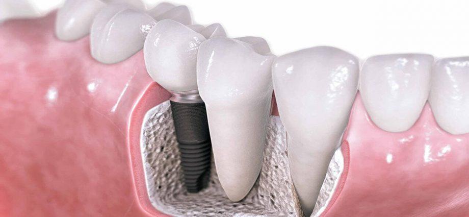 implant_dentar